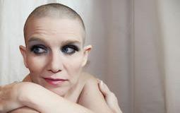 Gynecologic Cancer - Practice